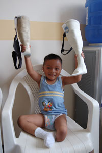 Boy with New Artifical Leg