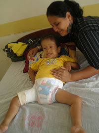 Boy in Cast with Mom