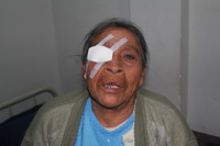 Patient After Having Cataract Surgery